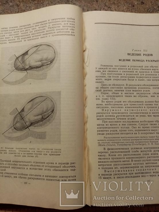 Учебник акушерства, фото №9