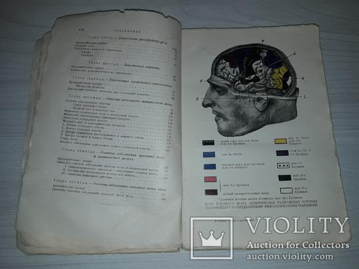 Учения о локализациях Головной мозг 1929 В.В.Крамер, фото №2