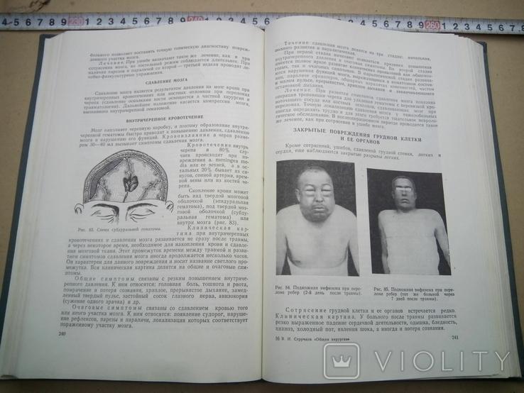 Общая хирургия, фото №6