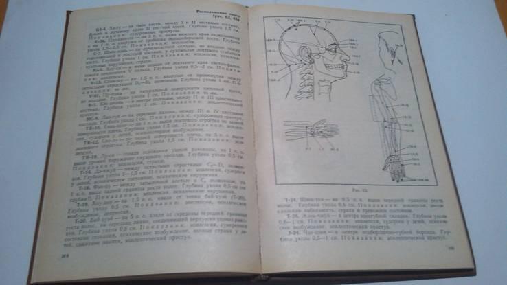 Практическое руководство по аурикулярной корпорвльной иглотерапии, фото №6