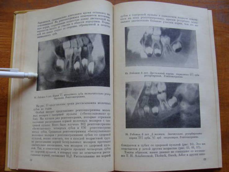 Болезни зубов и слизистой оболочки полости рта у детей., фото №8