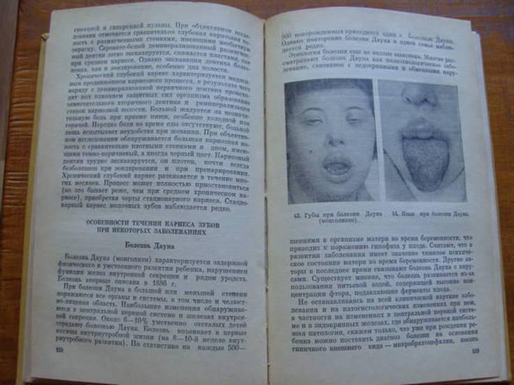 Болезни зубов и слизистой оболочки полости рта у детей., фото №9