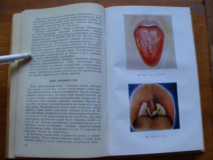 Болезни зубов и слизистой оболочки полости рта у детей., фото №10