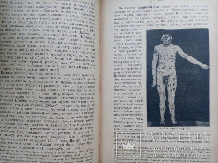 Болезни кожи.1900г, фото №4