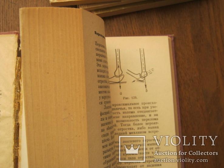 Четыре книги по переломам и вывихам, фото №9