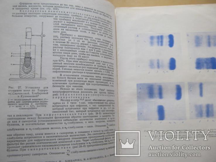 Клинические лабораторные исследования в педиатрии, фото №10