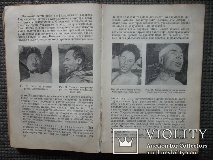 Судебная медицина.1949 год., фото №7