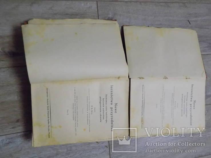 Медична енциклопедія на польській 1930 в двох томах, фото №5
