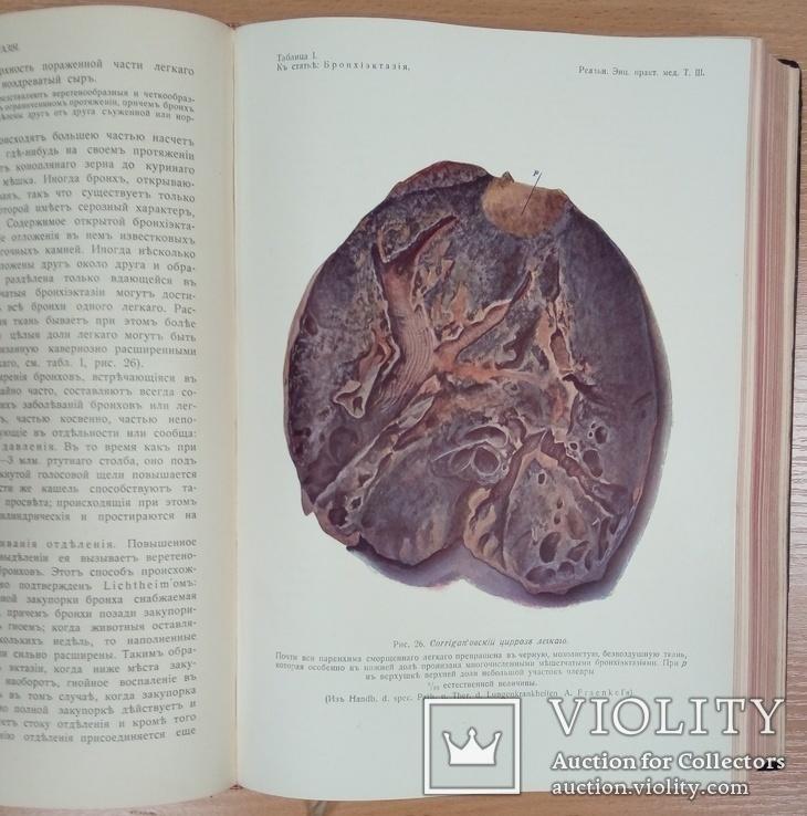 Реальная энциклопедия практической медицины. Том 3, фото №11