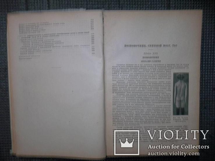 Учебник частной хирургии.Том 2.1947 год., фото №7
