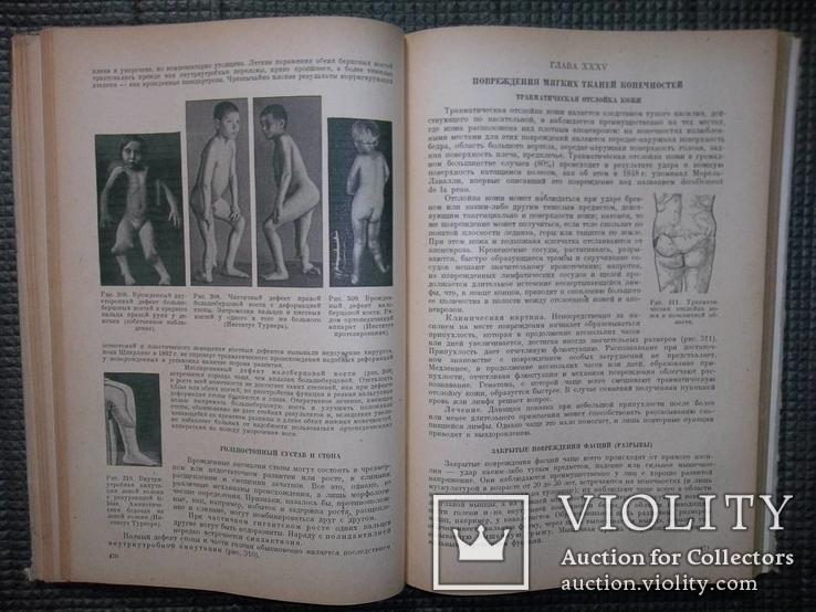 Учебник частной хирургии.Том 2.1947 год., фото №9
