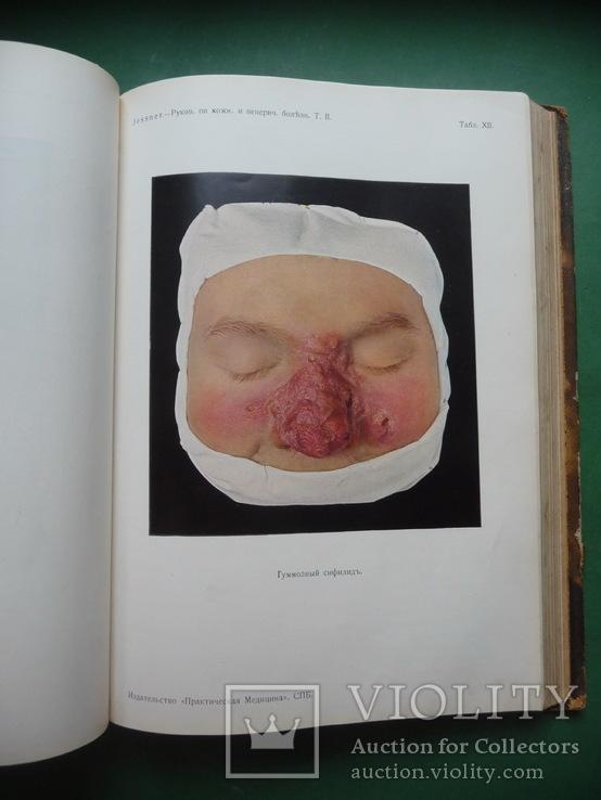 Кожные и венерические болезни , Т.I и Т.II ., фото №7