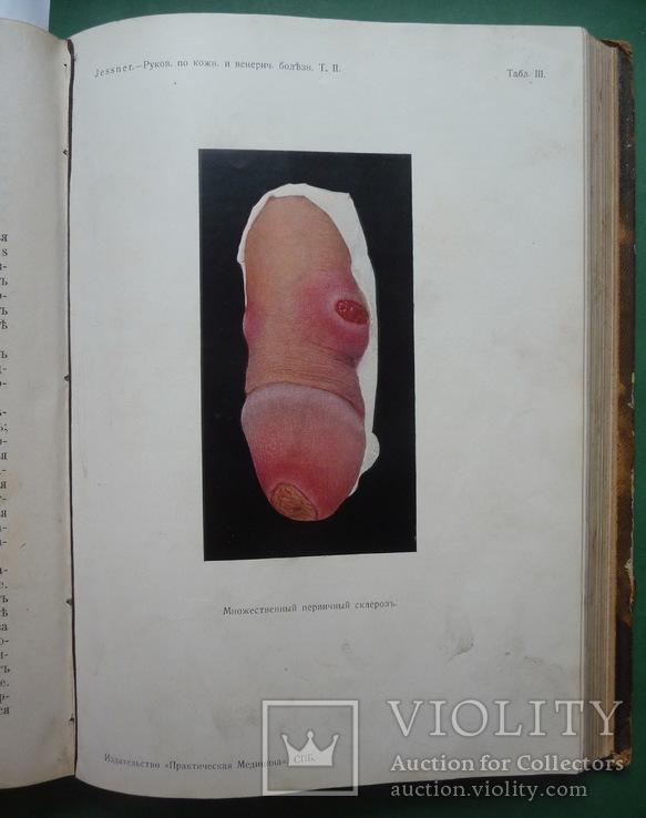 Кожные и венерические болезни , Т.I и Т.II ., фото №10