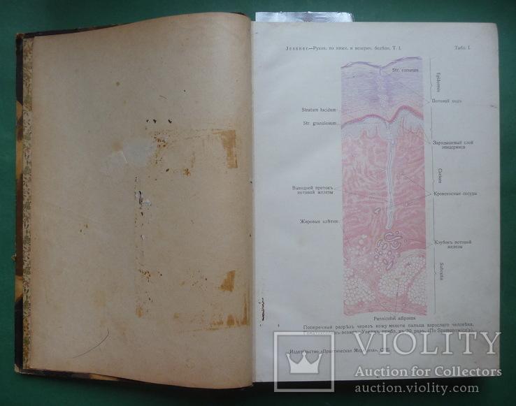 Кожные и венерические болезни , Т.I и Т.II ., фото №12