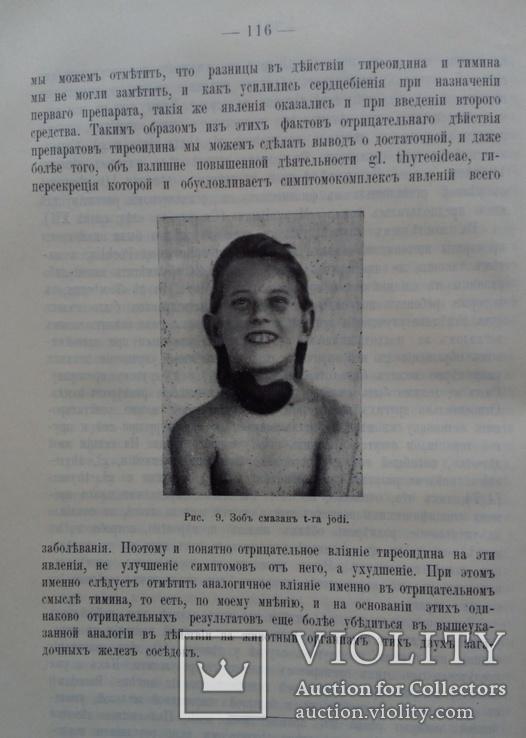 Тимус у человека 1910г. Опыты и эксперименты., фото №2