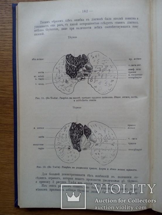 Тимус у человека 1910г. Опыты и эксперименты., фото №10
