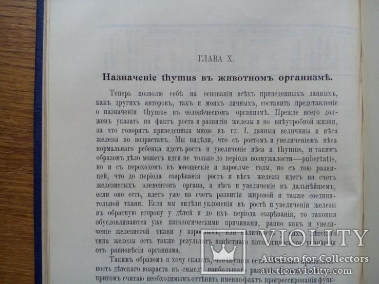 Тимус у человека 1910г. Опыты и эксперименты., фото №11
