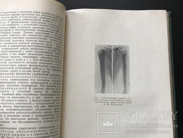 1957 Медгиз. Спортивная медицина, фото №6