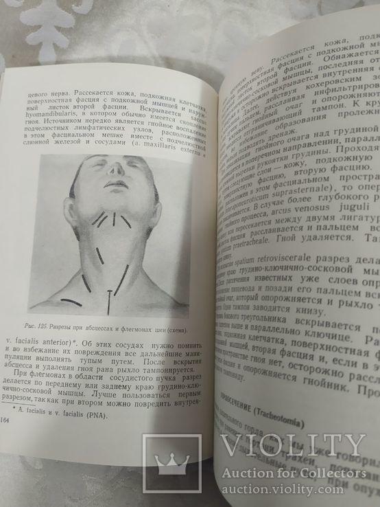 Оперативная хирургия. Бабук 1962, фото №5