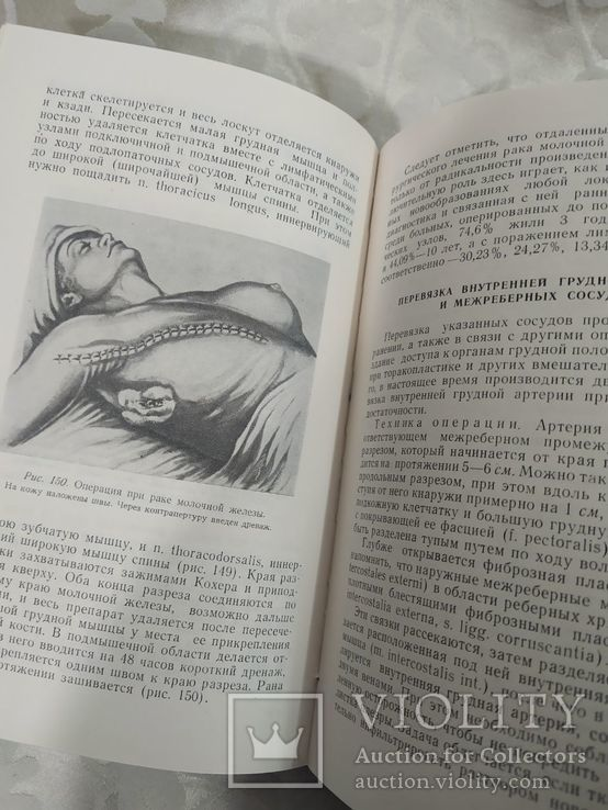 Оперативная хирургия. Бабук 1962, фото №6