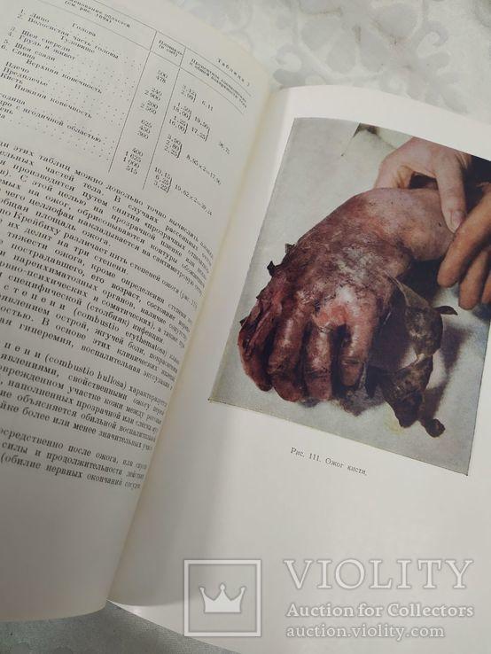 Общая хирургия. Медгиз 1953, фото №8