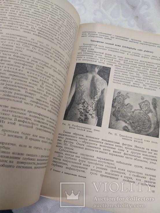 Кожные и венерические заболевания. Медгиз 1953, фото №5