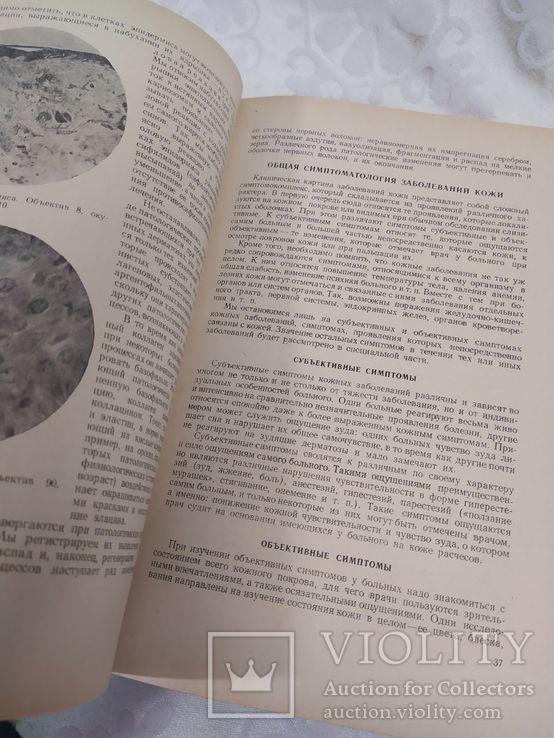 Кожные и венерические заболевания. Медгиз 1953, фото №6