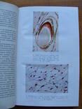 Болезни зубов и слизистой оболочки полости рта у детей., фото №5