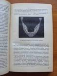 Болезни зубов и слизистой оболочки полости рта у детей., фото №7