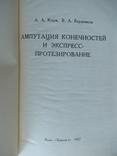 Ампутация конечностей и експрес протезирование., фото 2