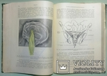 1913 Курс гинекологических операций 316 рис. photo 6