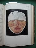 Кожные и венерические болезни , Т.I и Т.II ., фото №2
