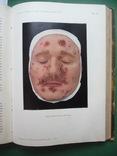 Кожные и венерические болезни , Т.I и Т.II ., фото №8