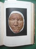Кожные и венерические болезни , Т.I и Т.II ., фото №11