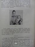 Тимус у человека 1910г. Опыты и эксперименты., фото №8
