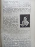 Тимус у человека 1910г. Опыты и эксперименты., фото №9