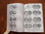 Монети УкраЇни 1992-2010 (105), фото №7