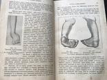 1907 Здоровье. Болезни органов движения,дыхательных органов. Венерические. Проституция, фото №8