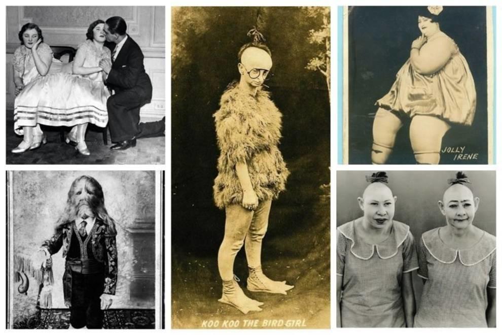 Они зарабатывали на своем уродстве: ретро-фото фриков, на которых когда-то тыкали пальцем