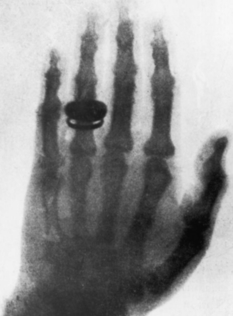 On the first X-ray was the hand of the scientist's wife