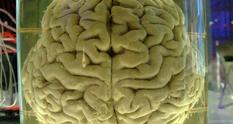 Колекція не для вразливих: 8500 зразків людського мозку